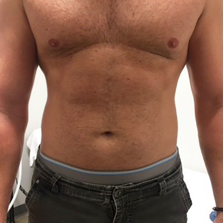 CryoSlimming abdomen before treatment