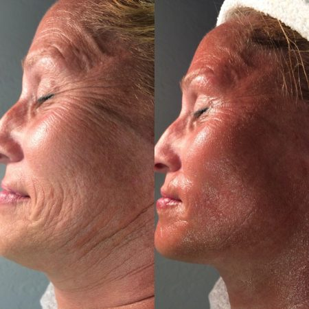 CryoFacial before & after 1 treatment