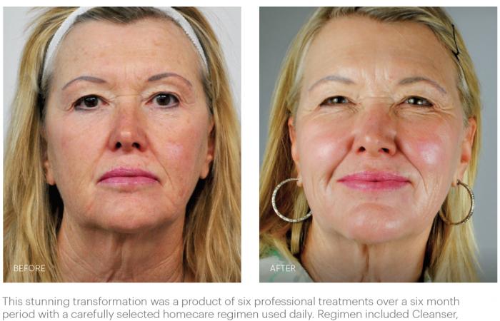Glo Skin Beauty Transformation1